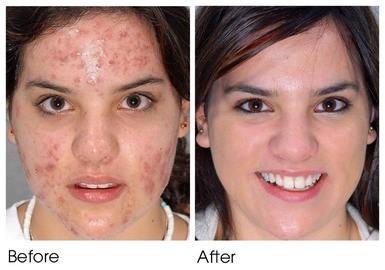 Skin Lightening Pretoria Skin Whitening Pills Cream