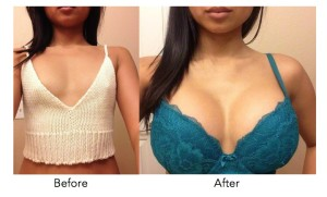 breast-enlargement-pretoria