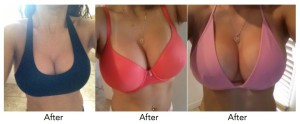 breast-enlargement-midrand